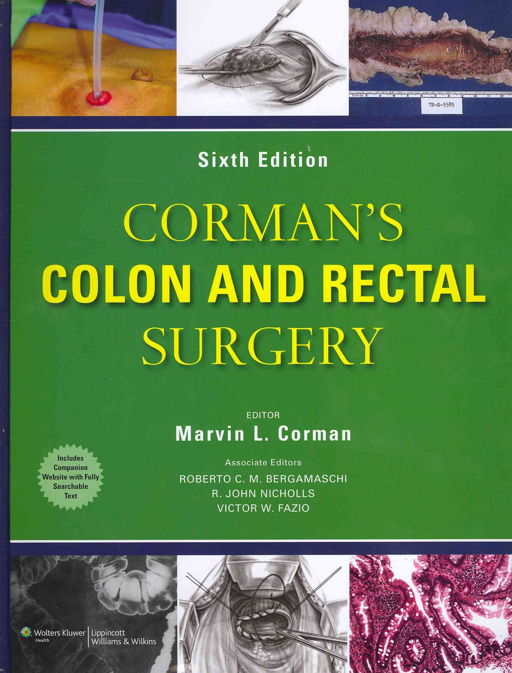 Corman's Colon and Rectal Surgery By Corman, Marvin